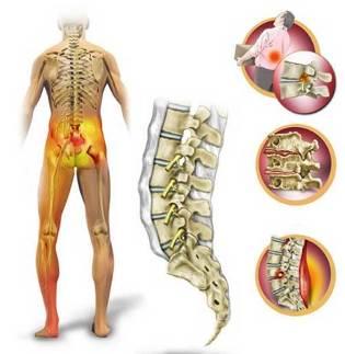 dureri de spate si picior drept amortit